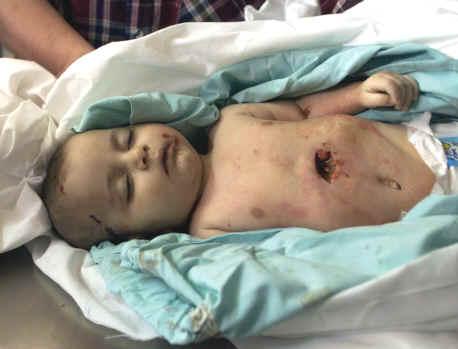 غزه ...